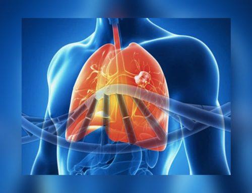 Las enfermedades pulmonares raras