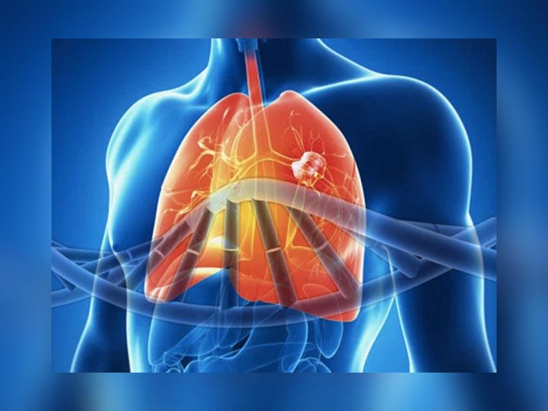 enfermedades pulmonares raras