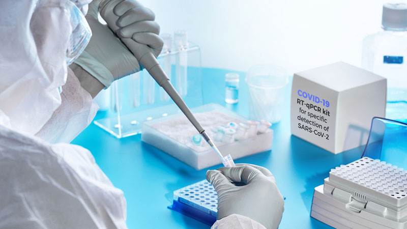 que es PCR
