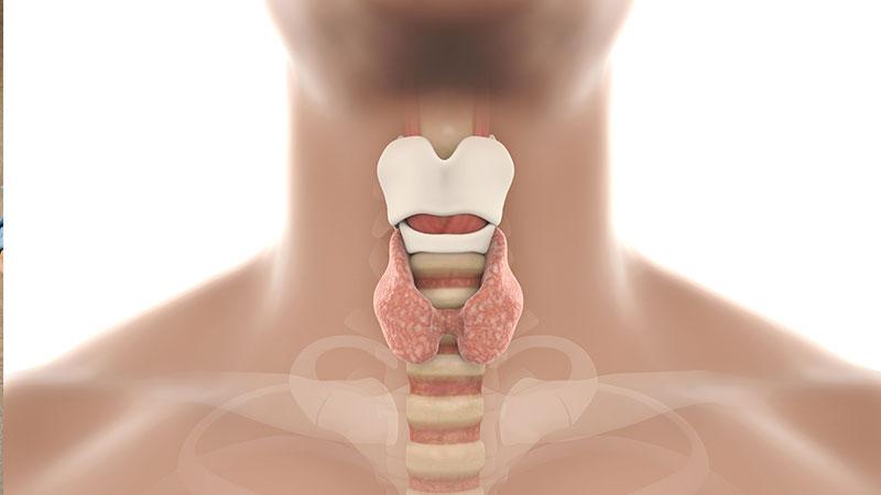 Neuropatía laríngea