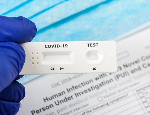 ¿Qué otros test existen para diagnosticar COVID-19?
