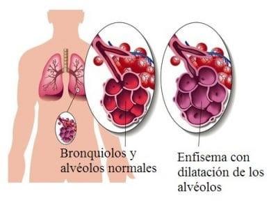 Imagen: www.fisioterapiaparatodos.com